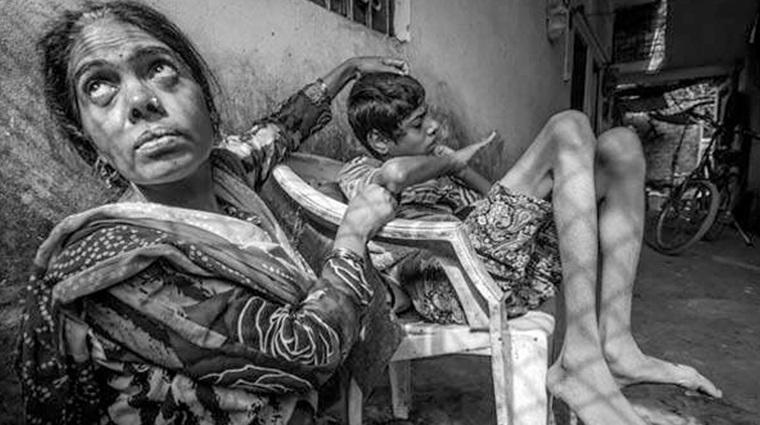 Bhopal Gas Tragedy: प्रकृति के'संरक्षक'नहीं,उसके'अंश'हैं,हम!